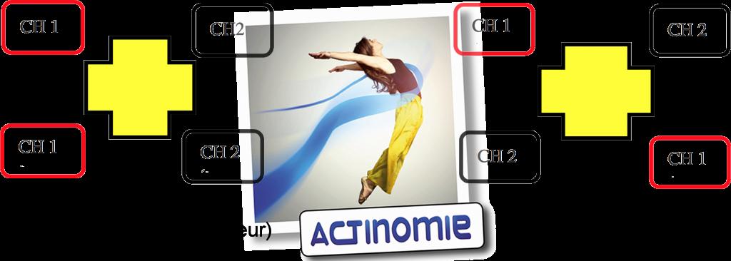 1- Position des électrodes - Actinomie