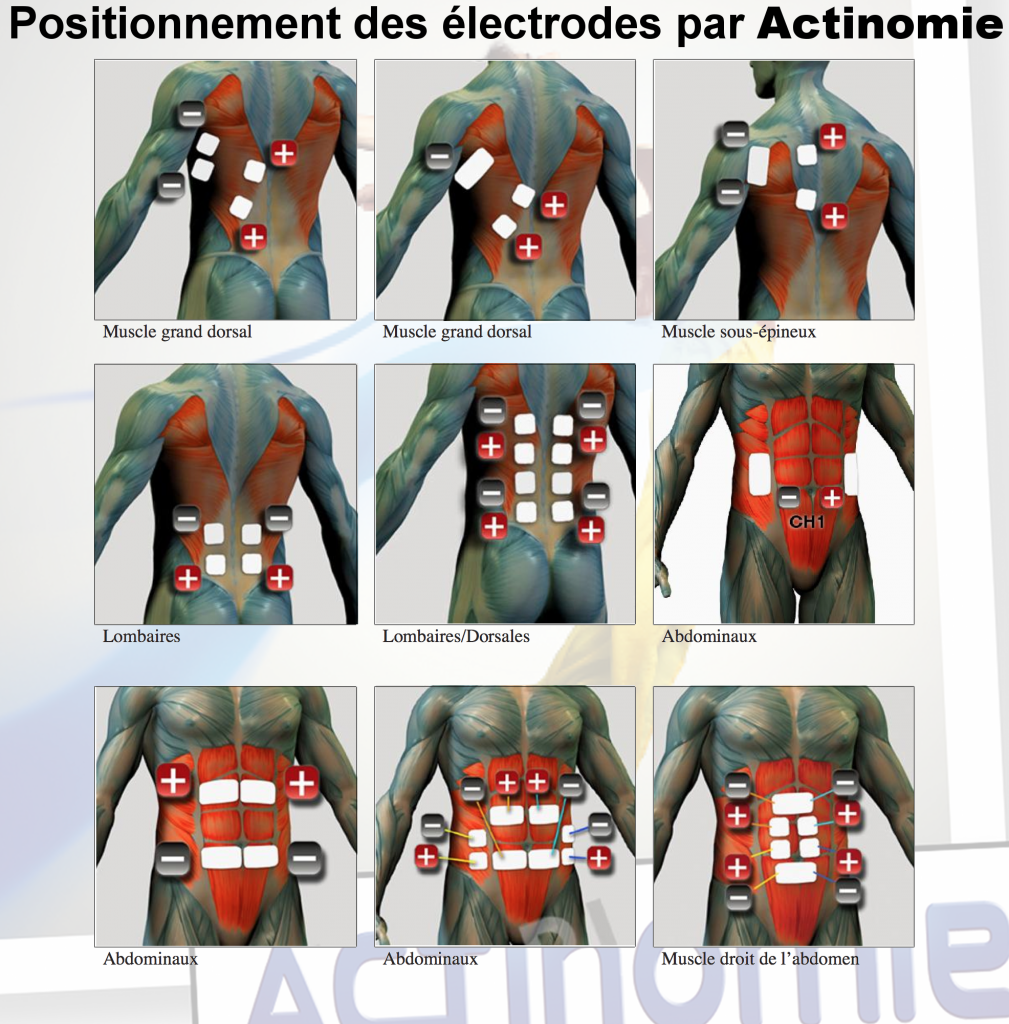 2- Position des électrodes - Actinomie