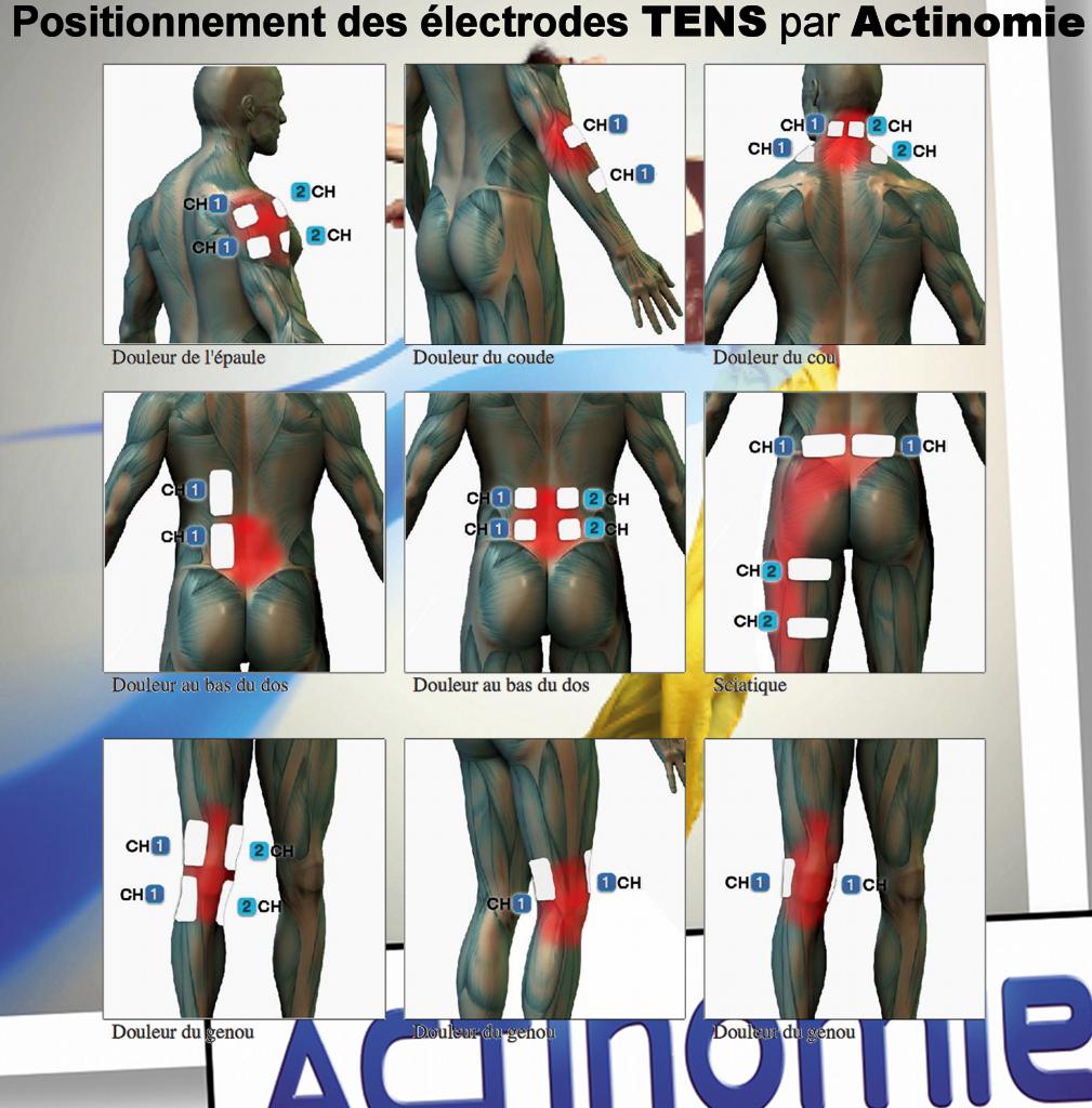 4- Position des électrodes TENS - Actinomie