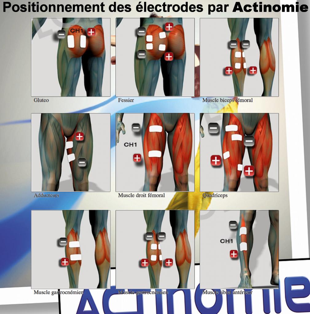 3- Position des électrodes - Actinomie