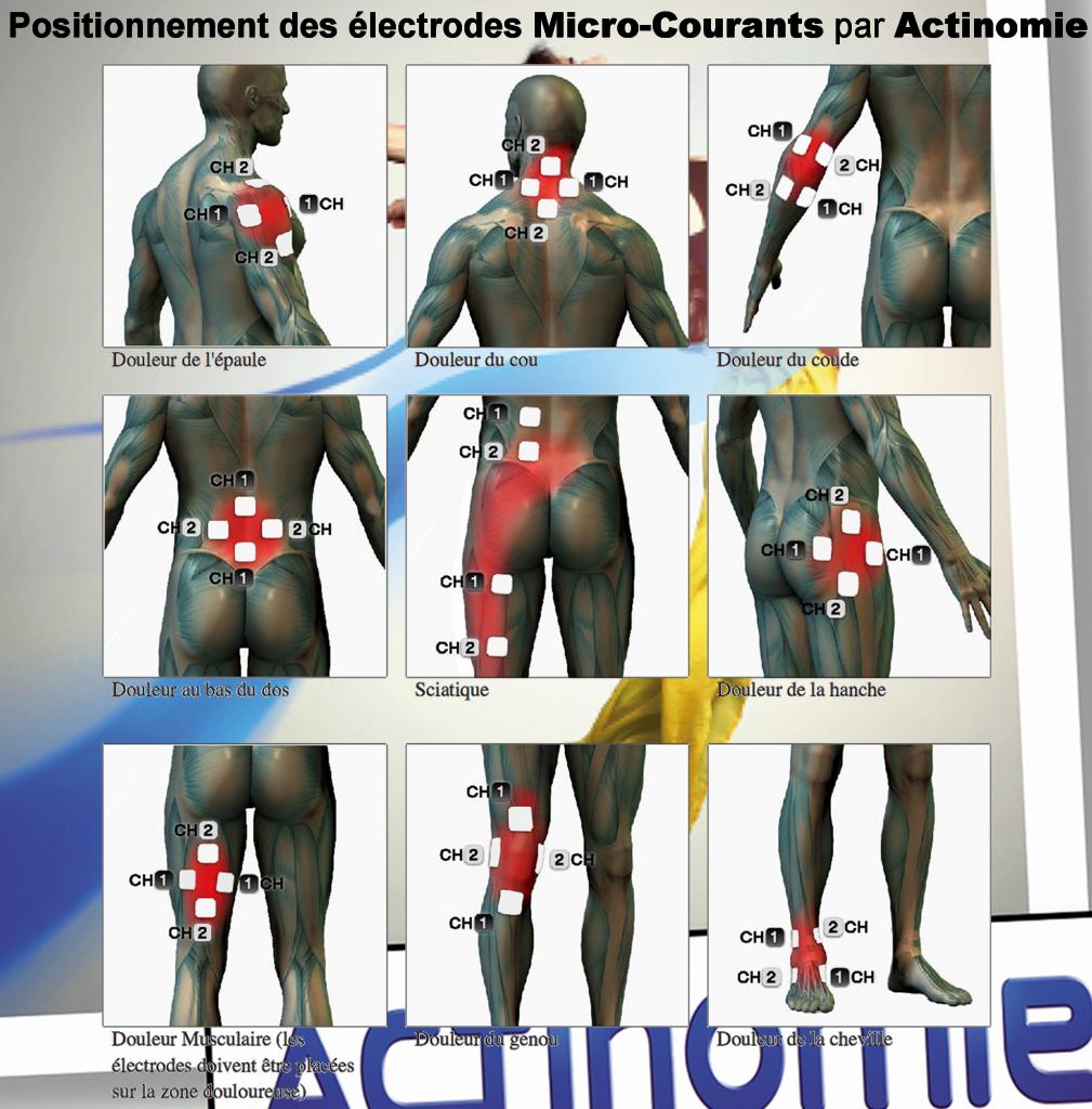 5- Position des électrodes Micro-courants - Actinomie